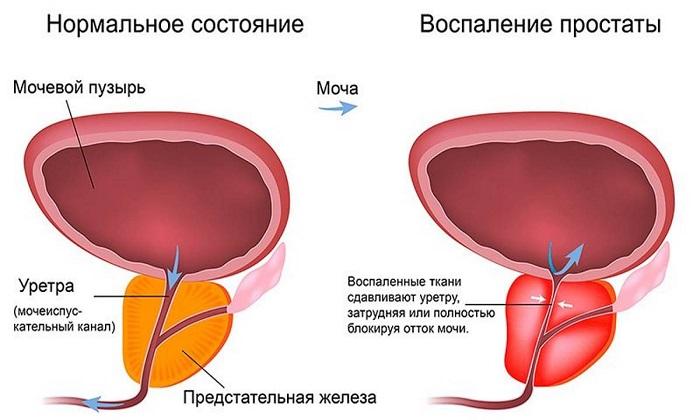Препарат позволяет быстро снять отёк и уменьшить воспаление при простатите