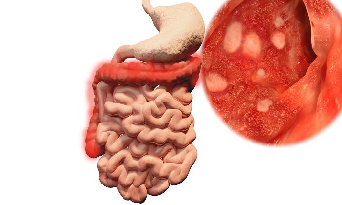 Введение свечей применяется при ряде заболеваний нижних отделов кишечника, в числе которых – проктит и язвенный колит