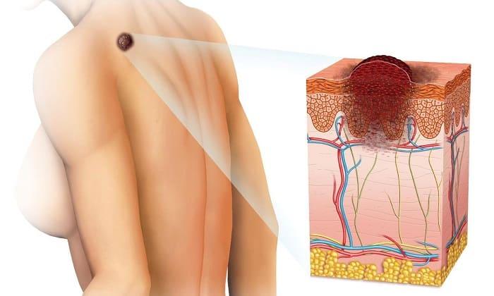 Гепатромбин Г запрещено применять, если у пациента диагностирован рак кожи