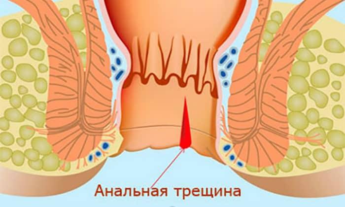 Образование анальных трещинок в слизистой ректального канала и сфинктера провоцирует кровотечение