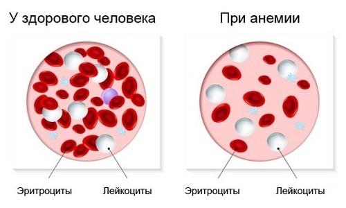 Постоянные или сильные кровотечения из ректального канала приводят к анемии