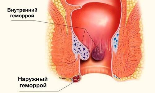 Выделяют две основные формы недуга: наружный и внутренний геморрой