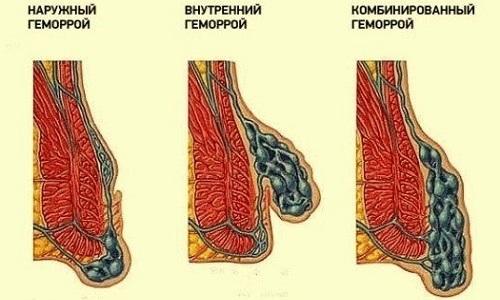 Всего существует три вида вида геморроя – внешний, внутренний и комбинированный