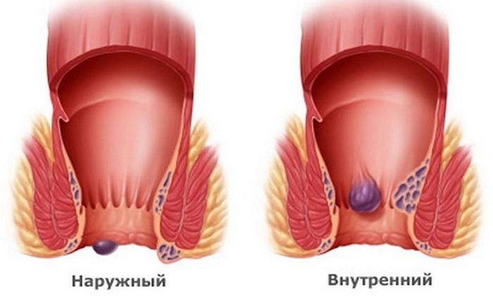 Геморрой может быть внутренним, внешним и комбинированным