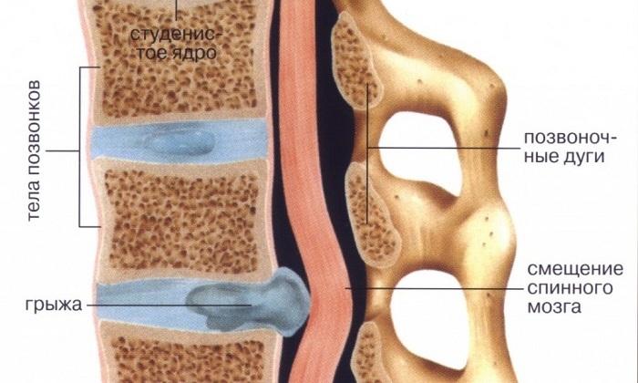 Поясница может болеть при развитии межпозвоночных грыж в поясничном отделе позвоночника