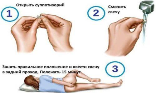 После испражнения аноректальную зону обмывают прохладной водой, обтирают мягкой тряпочкой, а затем вводят суппозиторий в прямую кишку