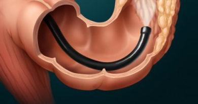 Колоноскопия - эффективный метод диагностики геморроя