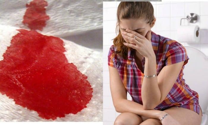 Выделение крови из прямой кишки во время акта дефекации также является признаком геморроя