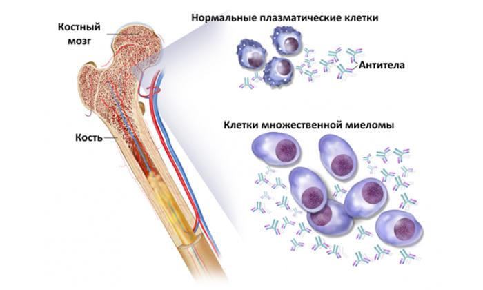 При раке костного мозга лекарство не назначают