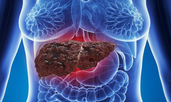 У больных, страдающих циррозом печени на фоне употребления алкоголя, часто наблюдают геморрой