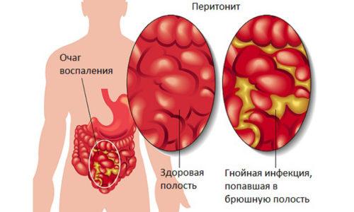Осложнение дивертикулеза толстой кишки - перитонит