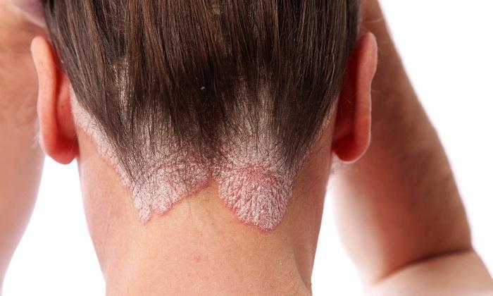 Лекарства с ихтиолом используют для лечения псориаза