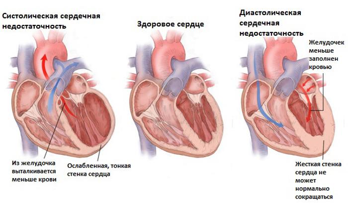 Колоноскопия противопоказана при сердечной недостаточности