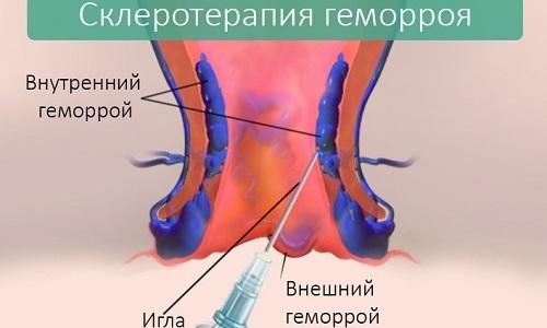 Склеротерапия – в вены геморроидальной шишки вводят склерозант, который склеивает стенки сосудов, что останавливает потерю крови