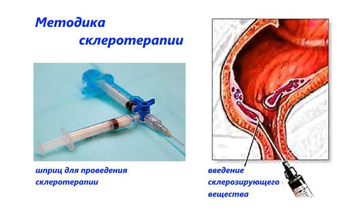 Часто для лечения болезни применяют склеротерапию