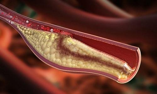 Тромбоз – в сосудах образуются кровяные сгустки, которые пережимают нервные окончания и вызывают резкую боль