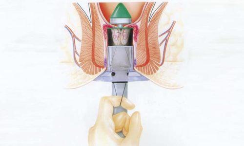 При операции Лонго происходит подтягивание геморроидальных шишек внутрь ректального канала, а не в их удаление