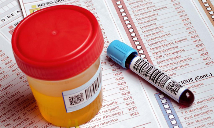 Перед операцией нужно сдать общий анализ крови и мочи