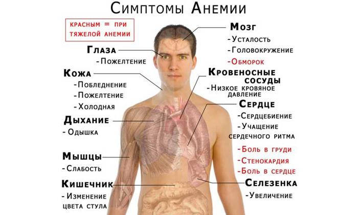 Кровотечения в следствие болезни приводят к малокровию