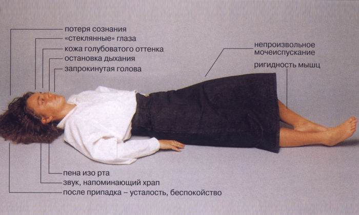 Средство противопоказано при эпилепсии