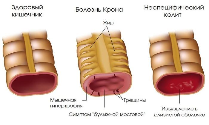 При синдроме Крона операция не проводится