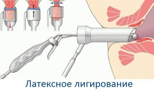 Если медикаментозная терапия не даёт результатов, доктор назначает безоперационную технику лечения геморроя - лигирование кольцами из латекса