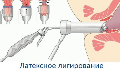 Лигирование кольцами из латекса – вмешательство, при котором передавливают основание узелка специальной лигатурой, изготовленной из латекса
