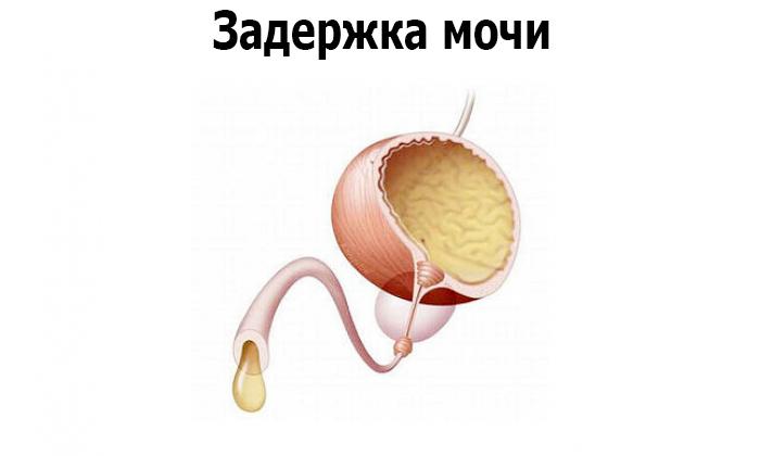 После геморроидэктомии может быть задержка мочи