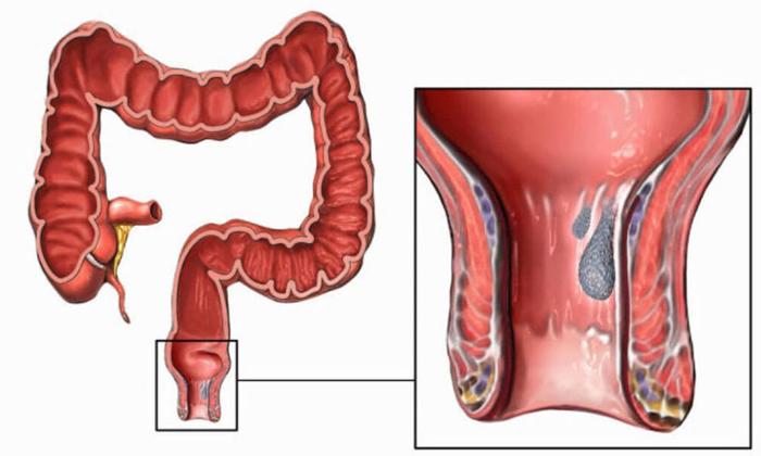 При длительном ущемлении геморроидальных шишек в анальном отверстии без своевременного лечения нарушается кровоток и развивается их омертвение