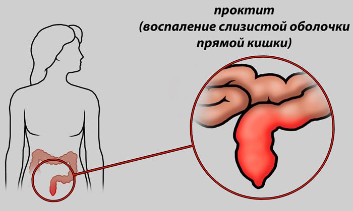 Препарат противопоказан при проктите