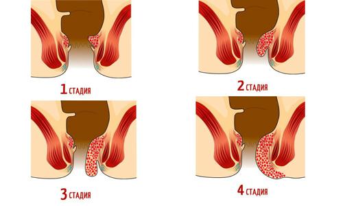 Хронический женский геморрой последовательно проходит 4 стадии