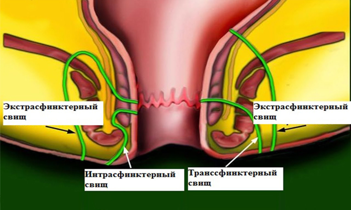Противопоказаны операции при свищах