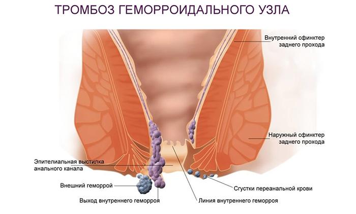 Геморрой может осложняться различными состояниями, например, аноректальным тромбозом