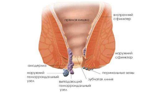 Высокая вероятность развития варикоза анальных вен в период вынашивания ребёнка связана с изменением гормонального баланса и естественной физиологией беременной женщины