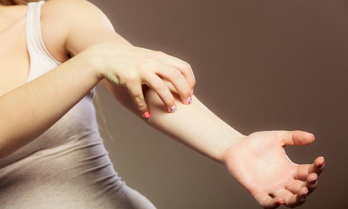 Если у вас имеется аллергия, то в течение 5-20 минут в месте нанесения толстянки появится сыпь и зуд