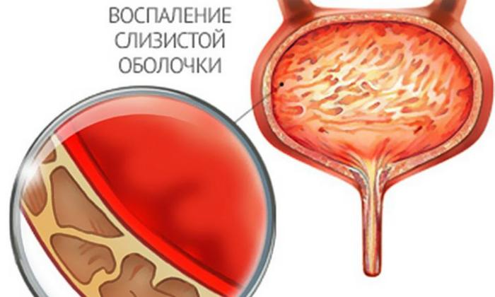 Чтобы избежать негативного воздействия на организм, следует отказаться от лечения холодной водой при цистите