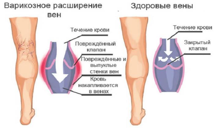 Официальными показанием к применению Индовазина является варикозная болезнь нижних конечностей
