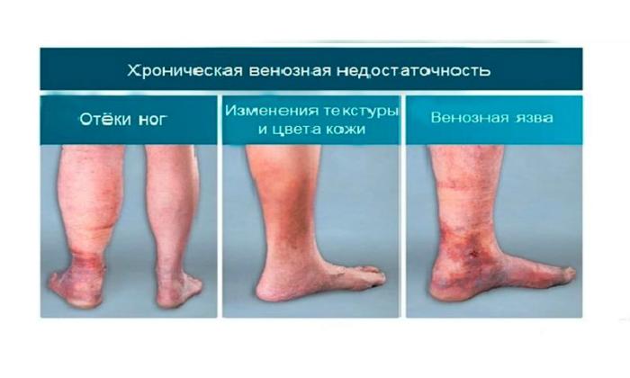 Официальными показанием к применению Индовазина является хроническая венозная недостаточность