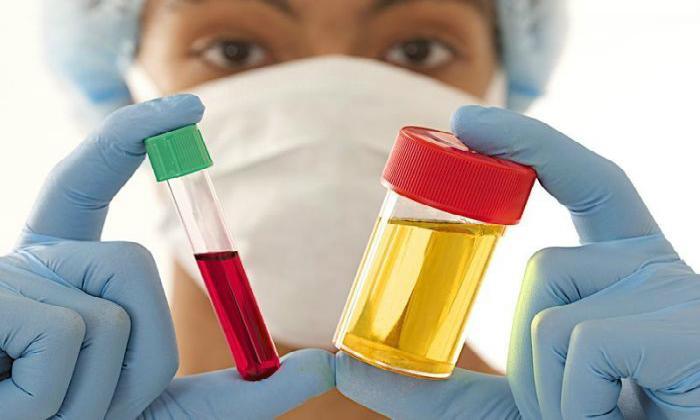 На предварительной консультации с врачом-проктологом проводят тщательно обследование, которое включает общеклинические анализы крови и мочи