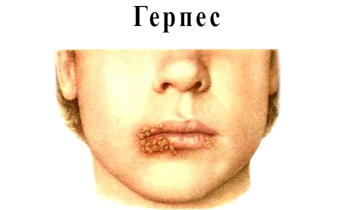 Толстянку можно применять при герпетической инфекции