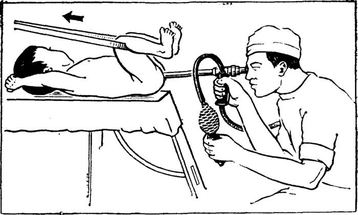 Детям назначают Ректороманоскопию. Процедура не очень приятная, но безболезненная