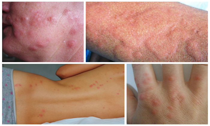 К сожалению, во время лечения имбирем у пациентов может проявиться аллергия
