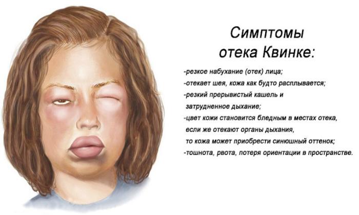 В тяжелых случаях у пациентов наблюдались отек Квинке
