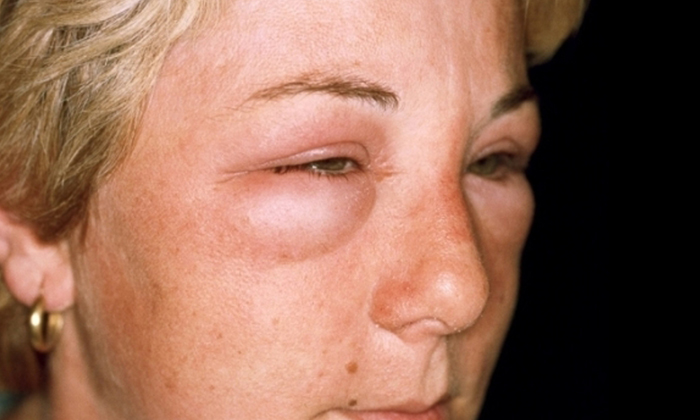 Проктозан в редких случаях может вызывать отек Квинке