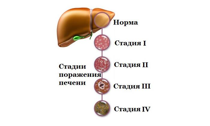 С осторожностью следует использовать Прокто-Гливенол при печеночной недостаточности