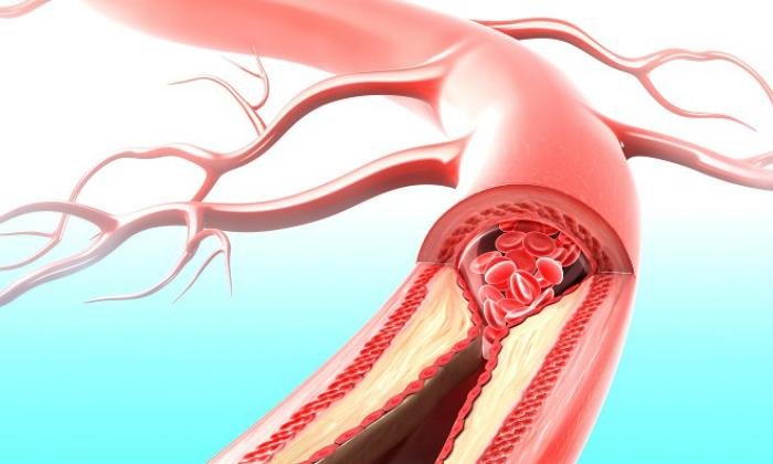 Благодаря противовоспалительному действию мази Постеризан устраняется венозный застой