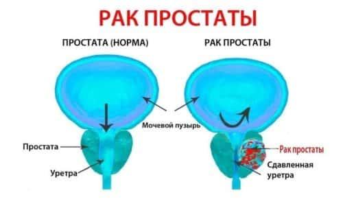 Рак предстательной железы - распространенное онкологическое заболевание среди мужчин в старше 45-50 лет