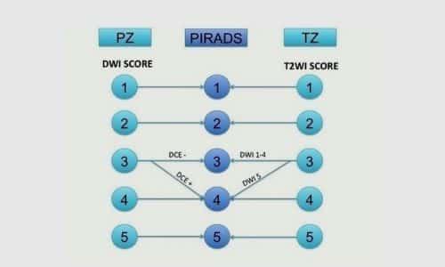 Для интерпретации данных МРТ и оценки вероятности наличия рака используют шкалу Pirads