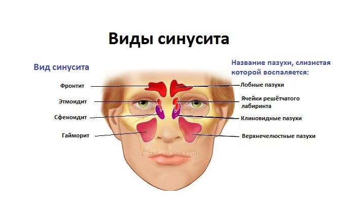 Индометацин показан при синусите