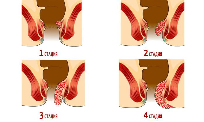 Изменения в мышцах и связках возникают на 3-4 стадиях геморроидальной болезни